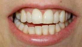 After treatment with In-Line Invisible Braces