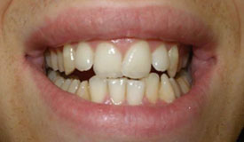 Before treatment with In-Line Invisible Braces