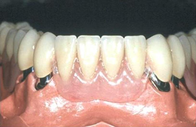 In line invisible braces telescopic dentures